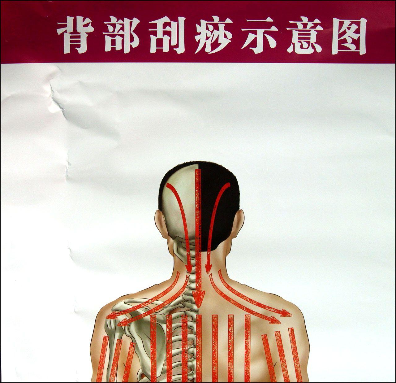 背部刮痧示意图气管炎哮喘保健图解