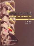 腰椎间盘突出症(第4版)(精)