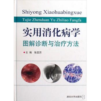 实用消化病学(图解诊断与治疗方法)(精)