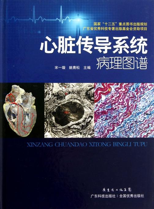 心脏传导系统病理图谱(精)