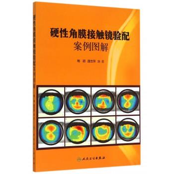 硬性角膜接触镜验配案例图解