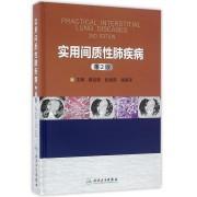 实用间质性肺疾病(第2版)(精)