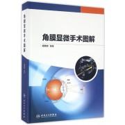 角膜显微手术图解(精)