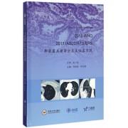 2015WHO2011IASLC\ATS\ERS肺腺癌病理新分类及临床实践(精)/AME科研时间系列医学图书