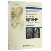 髋臼骨折(精)/积水潭创伤骨科手术技巧丛书