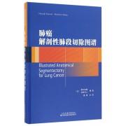 肺癌解剖性肺段切除图谱(精)