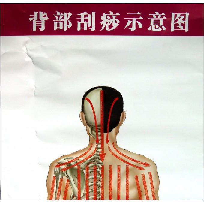 刮腰骶_背部刮痧_中医背部刮痧示意图_淘宝助理